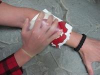kondom jako ochranná rukavice