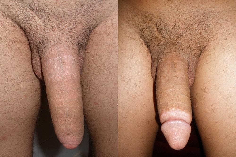 penis před a po obřízce