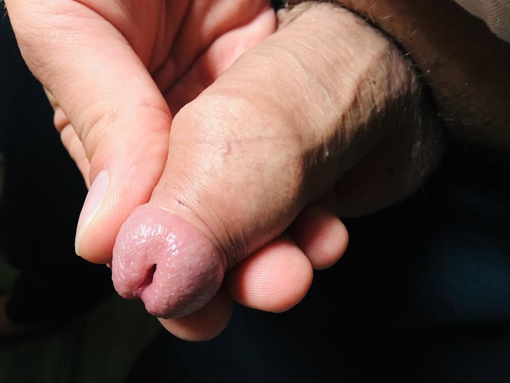 částečná fimóza, zúžená předkožka
