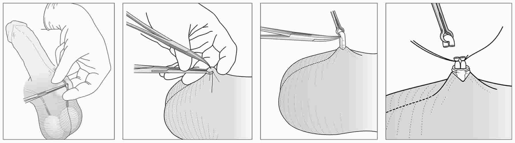vasektomie bez skalpelu