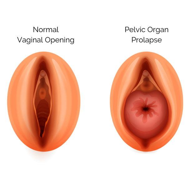 Výhřez dělohy