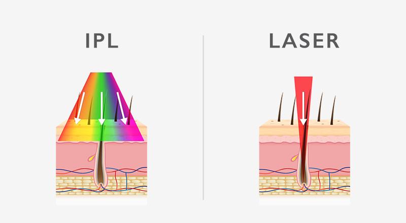 IPL versus laser