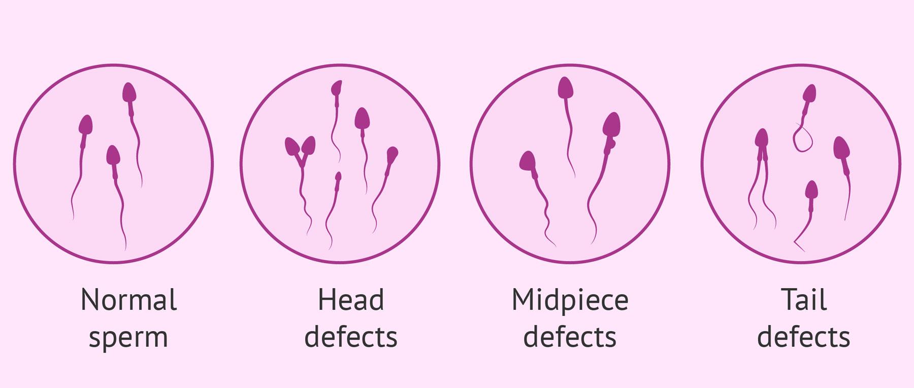 Poruchy spermií