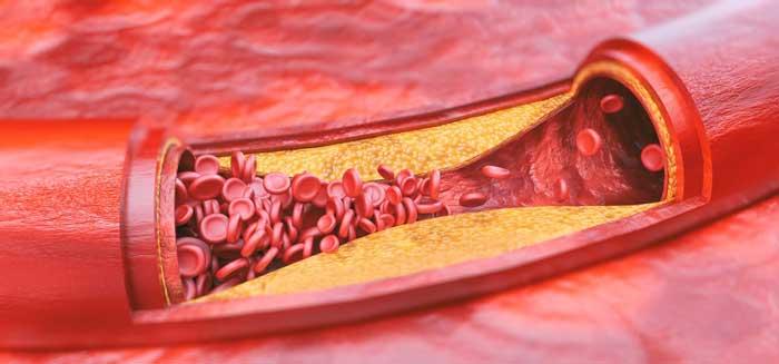 I ucpané cévy mohou být příčinou špatné erekce