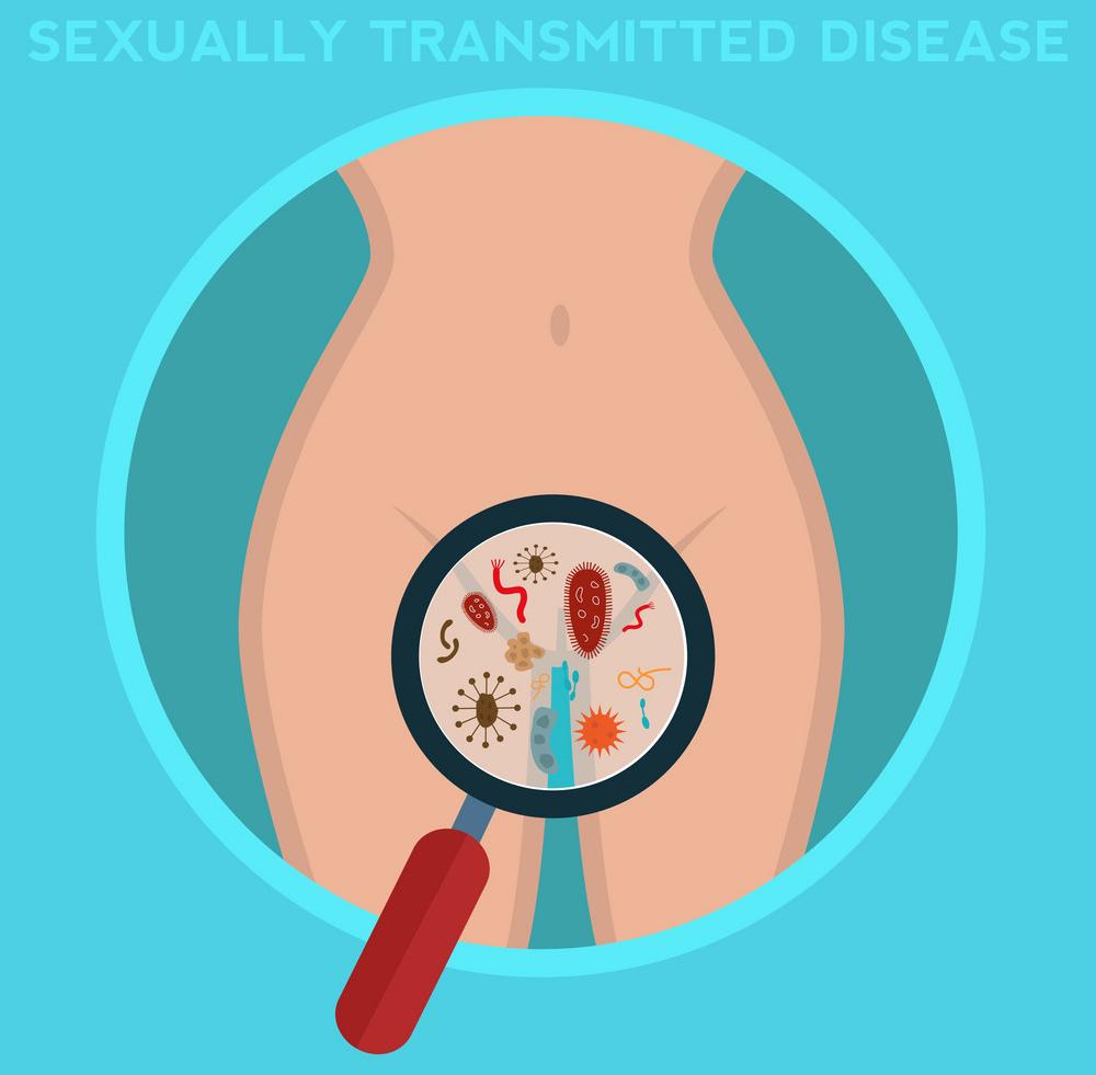 Sexuálně přenosná nemoci, Sexually Transmitted Infection, sexuálně přenosné infekce, SPN, SPI